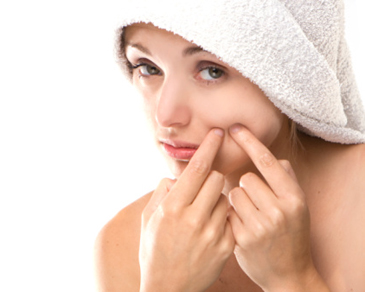 How to Remove Pimples on Your Face